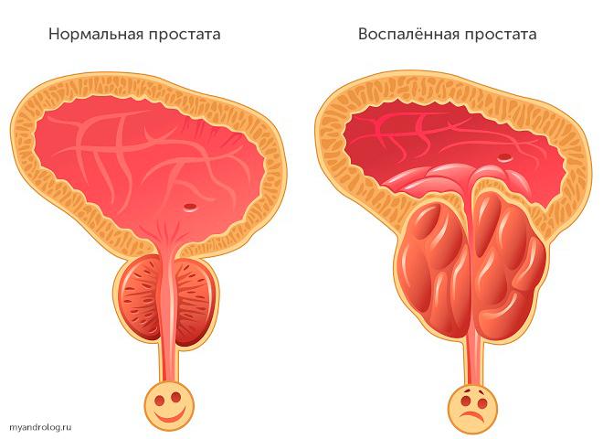 Простатит: причины, разновидности, симптомы и лечение