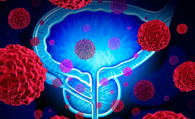 Симптомы рака предстательной железы и методы лечения