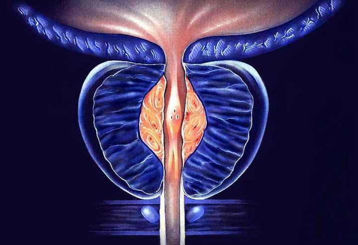 Симптомы хронического простатита и методы лечения