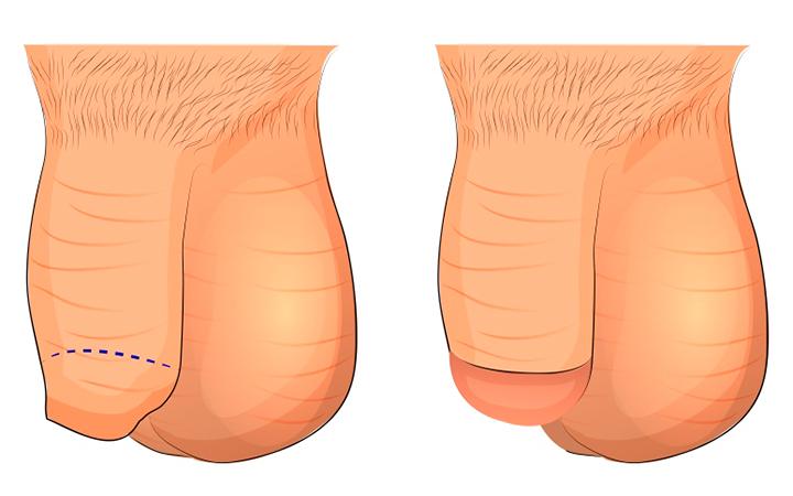 Частичное обрезание крайней плоти