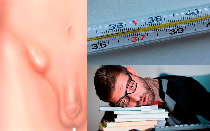Симптомы герпеса