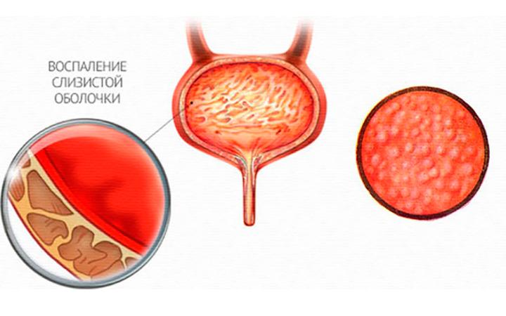 Воспаление слизистой оболочки мочевого пузыря