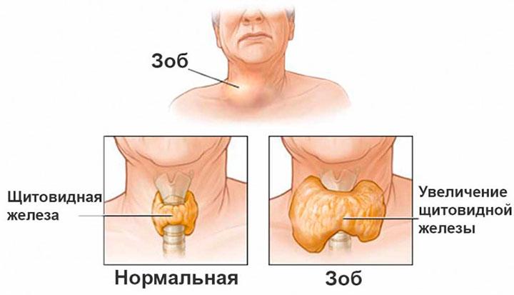 Узлы в щитовидной железе: чем опасны и как их лечат