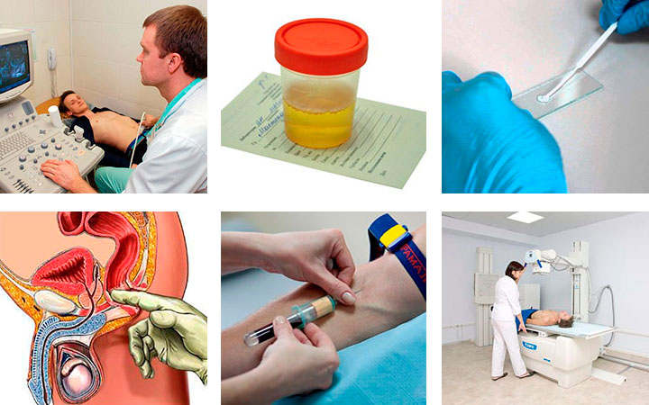 Причины появления простатита