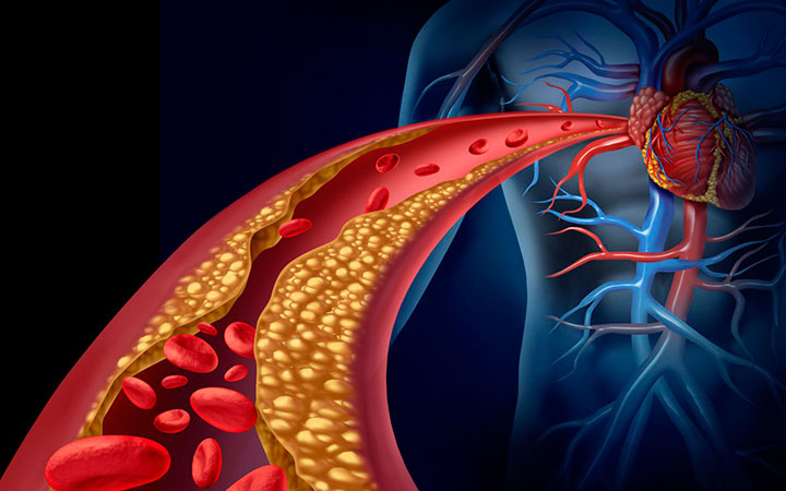 Какая норма холестерина в крови у мужчин таблица по возрастам