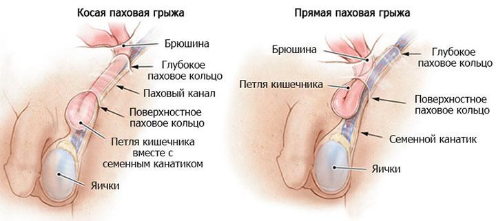 Ударно-волновая терапия - Диасервис