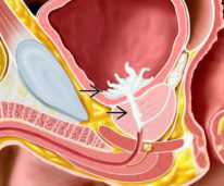 Причины и лечение ретрогадной эякуляции у мужчин