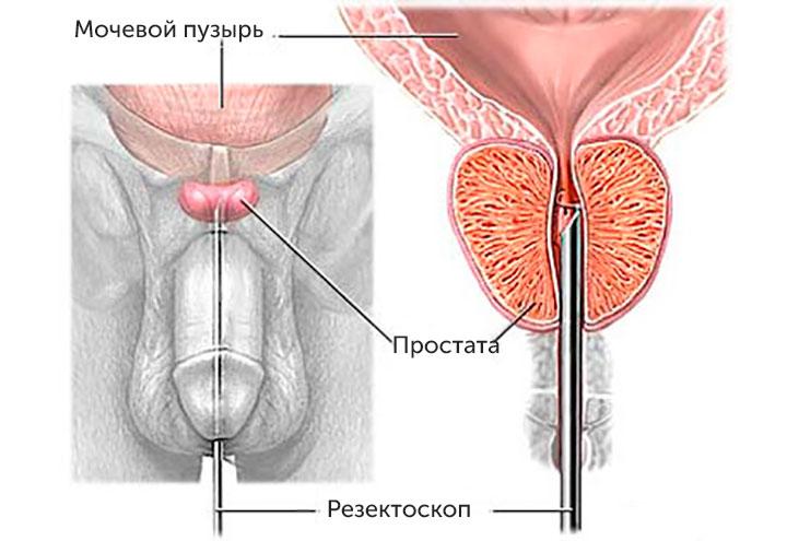 Лечение травами предстательной железы