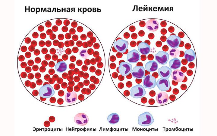 Заболевания крови могут носить и онкологический характер