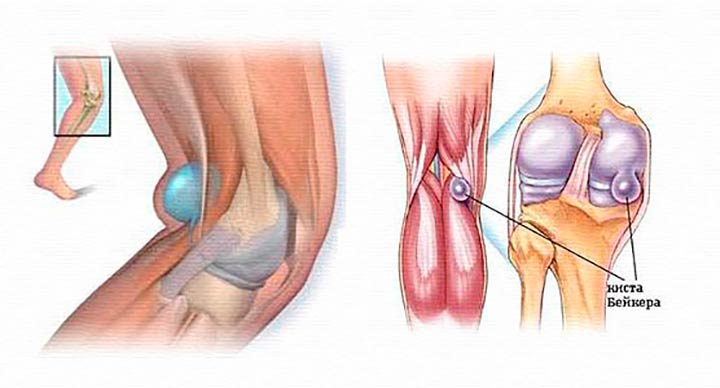 Подколенная или коленная киста