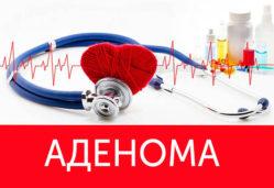 Что такое аденома простаты, причины ее возникновения