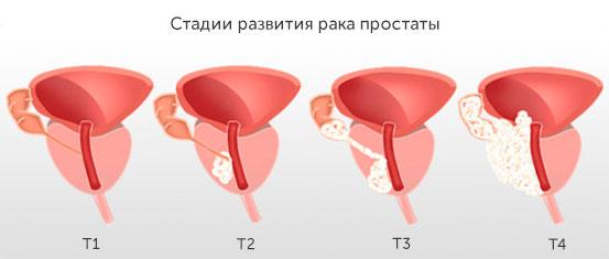Стадии развития рака предстательной железы