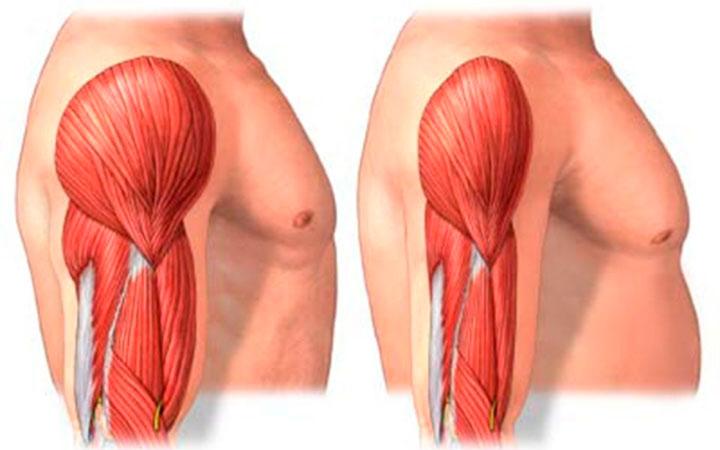 Симптомы мышечной дистрофии, причины и методы лечения