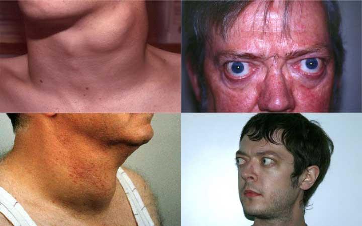 Причины и симптомы увеличения щитовидной железы