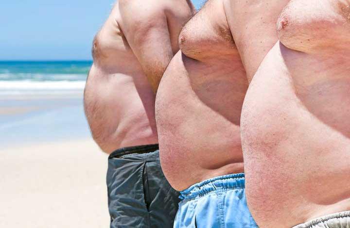 Стадии ожирения у мужчин