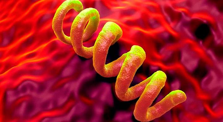 Treponema pallidum - причина возникновения сифилиса