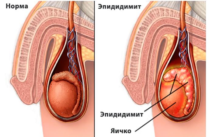 Что такое эпидидимит у мужчин