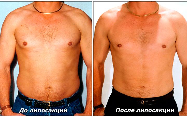 До и после проведения липосакции