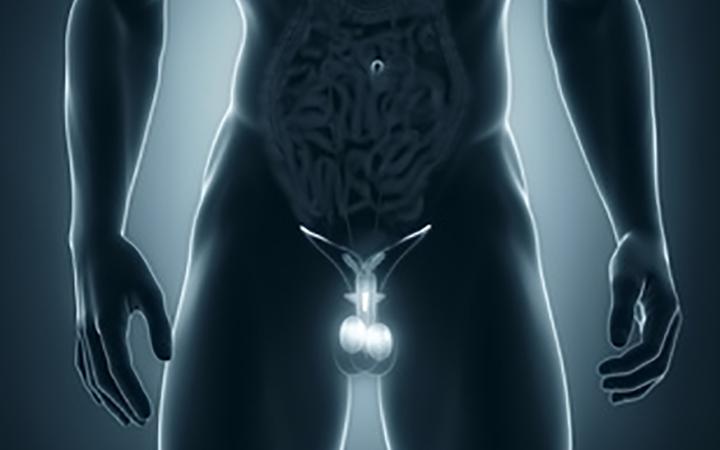 Основные методы безоперационного лечения варикоцеле у мужчин