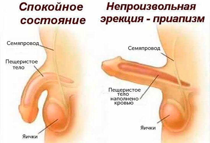 Болезнь приапизм у мужчин