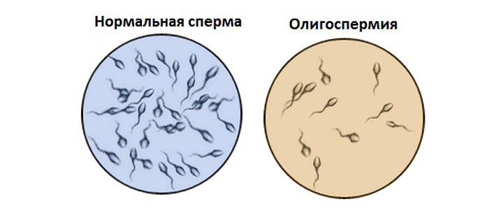 Олигоспермия – это снижение количества семенной жидкости
