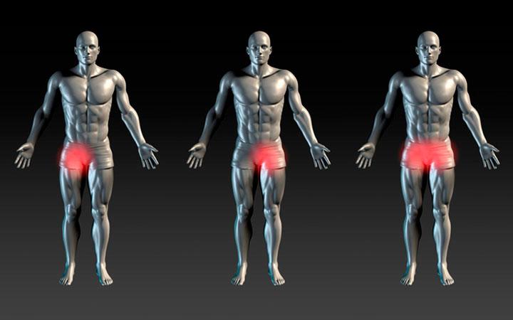 Физические упражнения при паховой грыже у мужчин: комплекс, риски