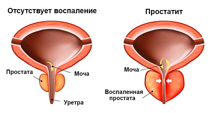 Воспаленная простата