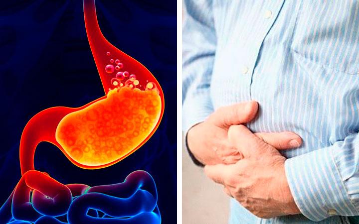 Вздутие живота основной симптом газообразования