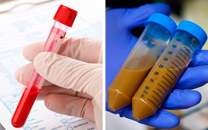 Анализ крови и кала