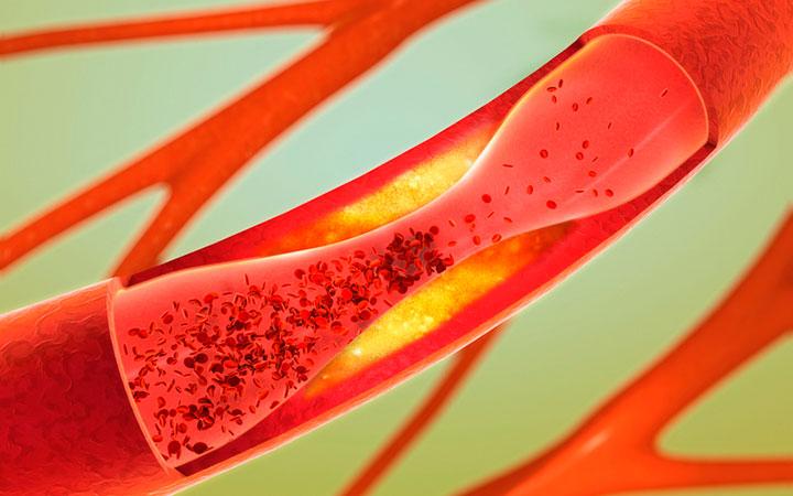 Повышенный холестерин у мужчин