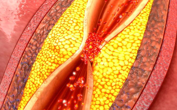 Повышенный холестерин у мужчин, о чем это говорит и что надо делать