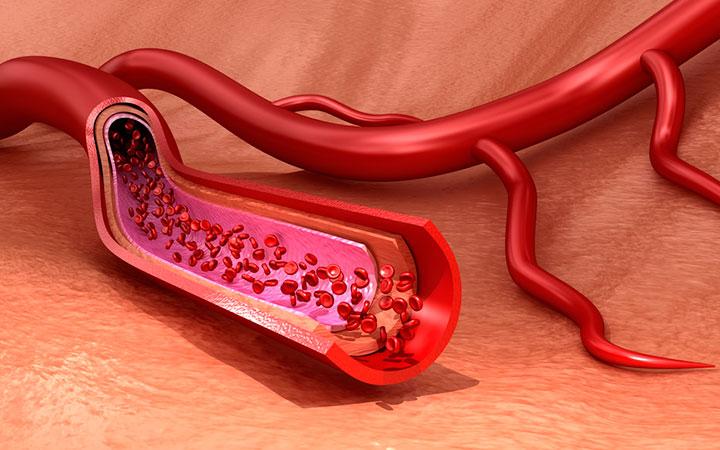 Повышенный гемоглобин у мужчин о чем это говорит и что надо делать