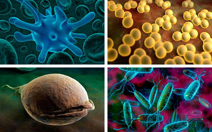 Инфекции половой сферы