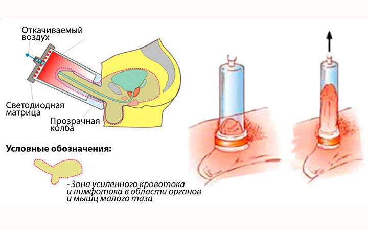 Вакуумный массаж для повышения потенции