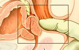 Как провести массаж и доение предстательной железы